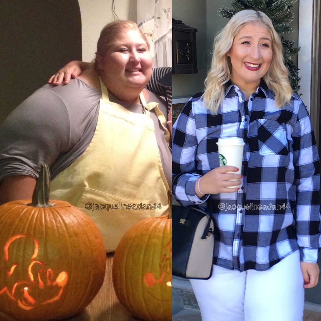 This girl showed the ugly reality of strong weight loss