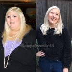 Jacqueline Before and After Weight Loss