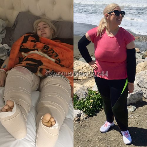Jacqueline right after surgery and now