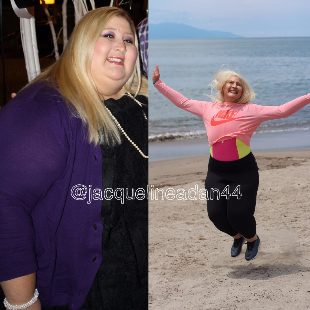 Jacqueline Before and After 350 pounds lost weight loss motivation