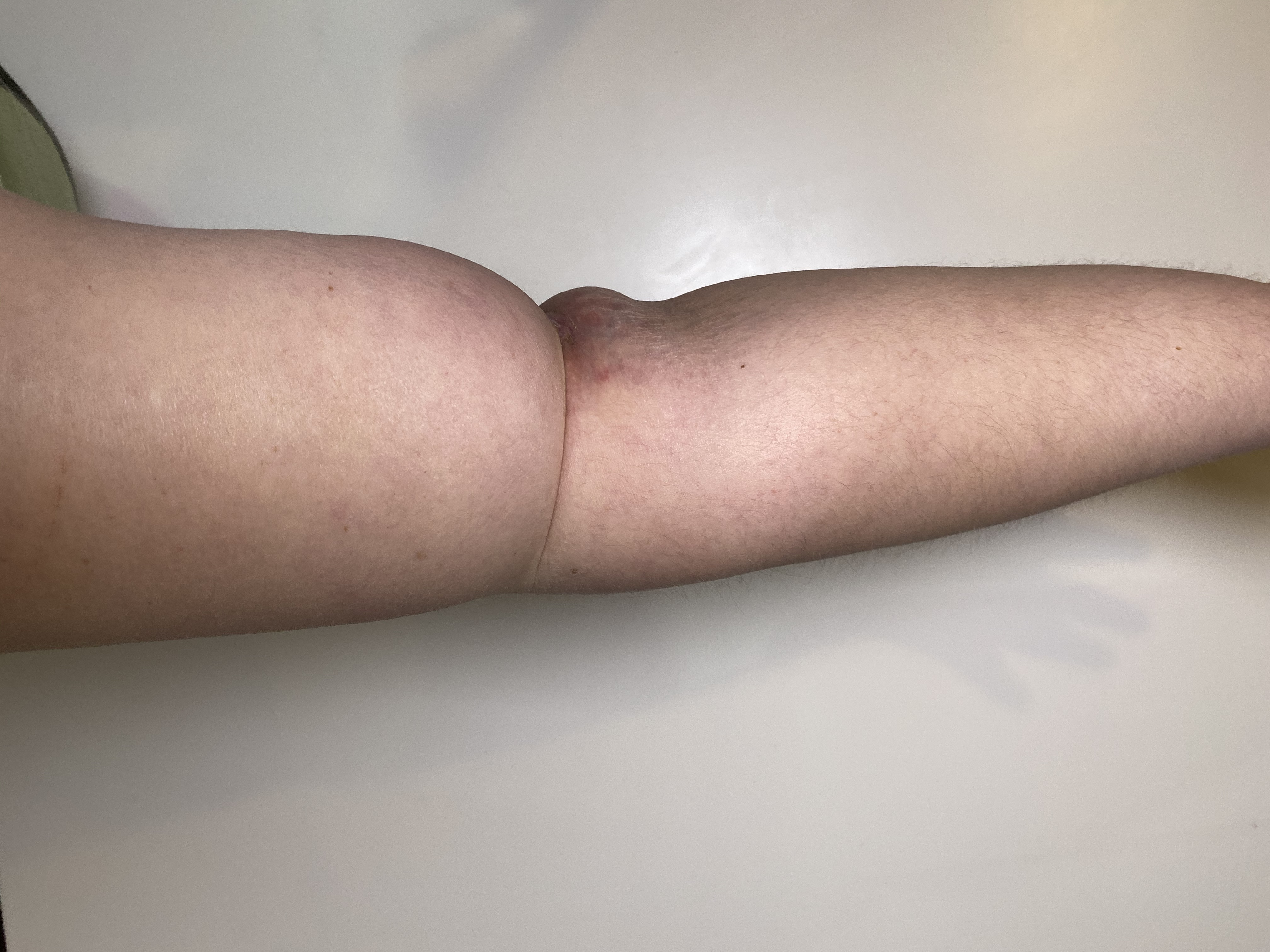 "Right Arm with ""banding"" near elbow."