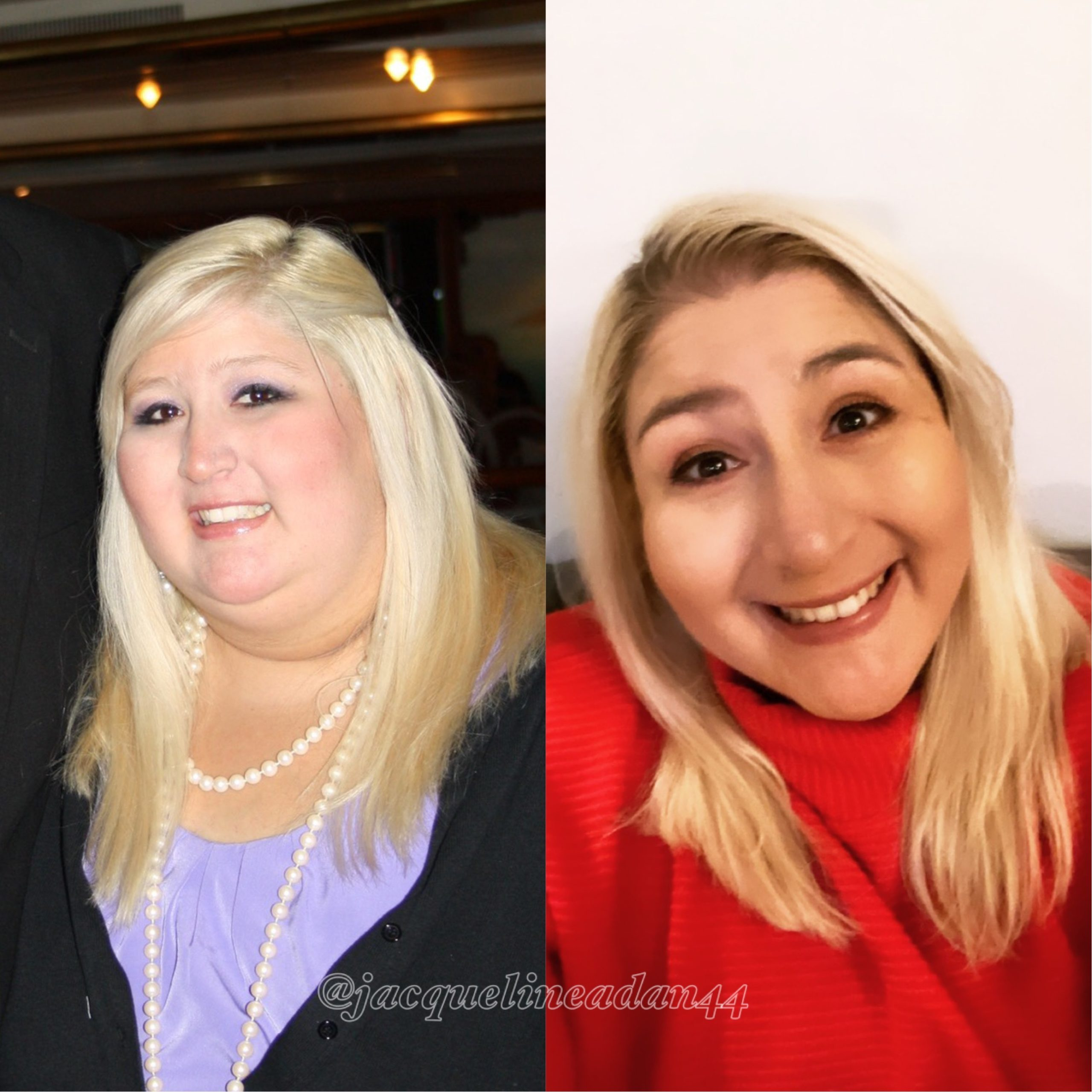 Jacqueline Adan Before and after 300+ pounds weight loss