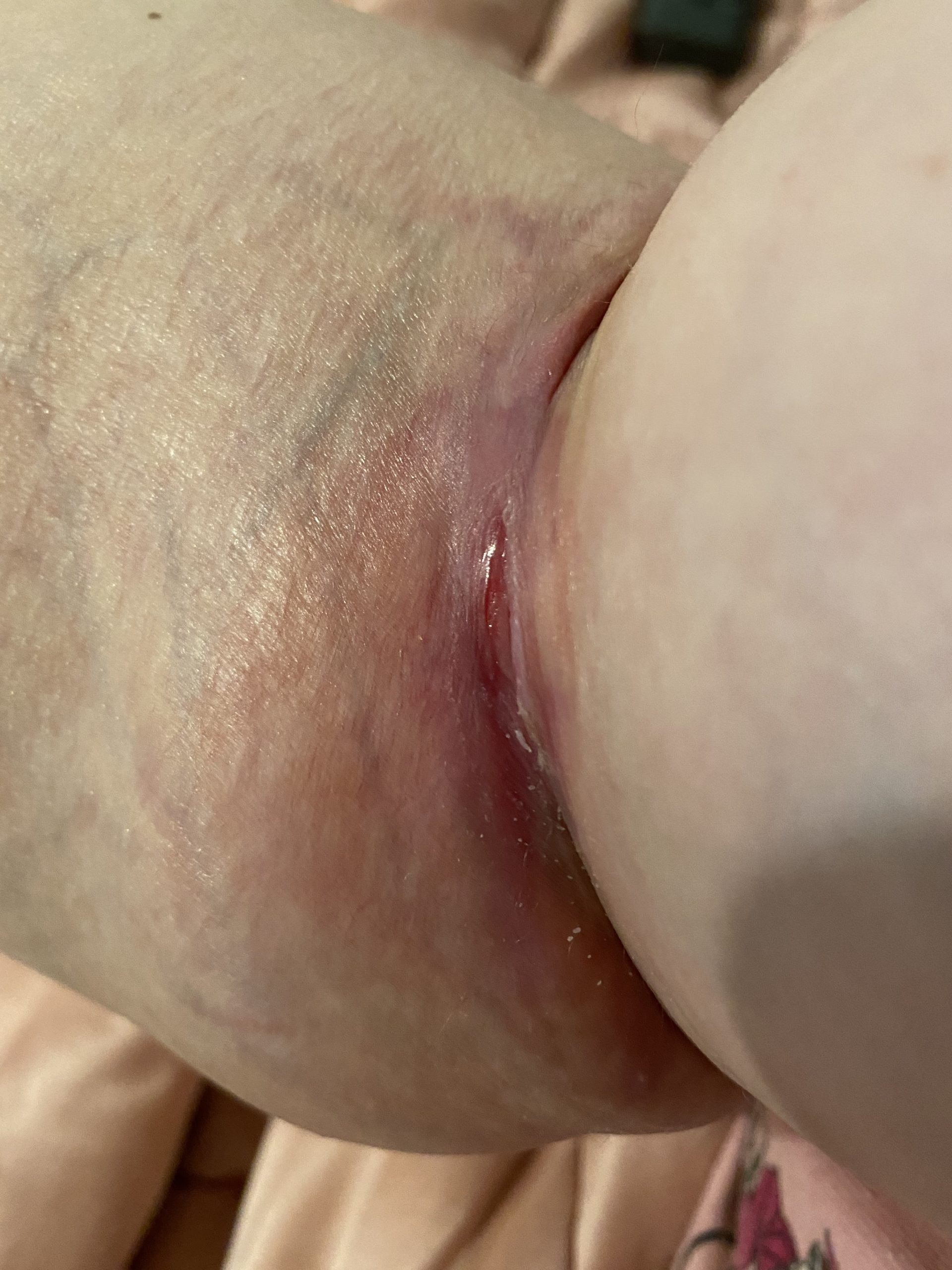 Right Arm with a wound in the crease near the elbow.